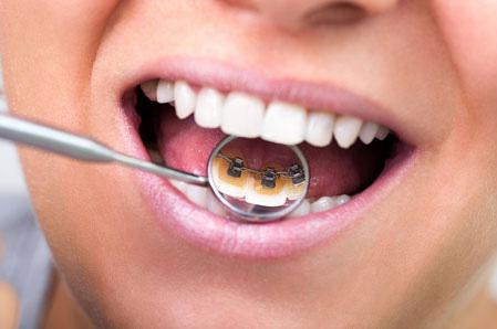 ortodonzia milano